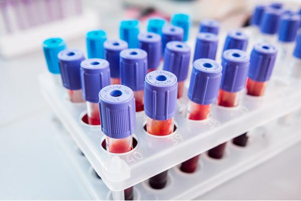 rack of blood samples